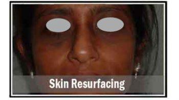 skin-resurfacing