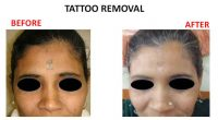tatto-removal6