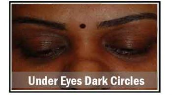 under-eyes-dark-circles