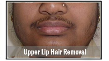 upper-lip-hair-removal