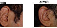 Ear-3